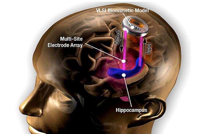 Transhuman Tuesday – Biohacker Rights and Memory Implants